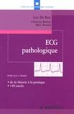 Luc De Roy et Christian Brohet - ECG pathologique - De la théorie à la pratique, 140 tracés.