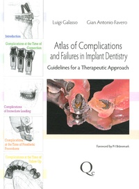 Luigi Galasso et Gian Antonio Favero - Atlas of complications and failures in implant dentistry - Guidelines for a therapeutic approach.