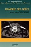 M. G. Dupuis et Philippe Peetrons - Imagerie des nerfs.