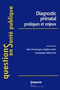 Marc Dommergues et Ségolène Ayme - Diagnostic prénatal - Pratiques et enjeux.