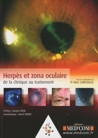 Marc Labetoulle - Herpès et zona oculaire - De la clinique au traitement.