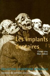 Les implants dentaires - Marc Lefevre |