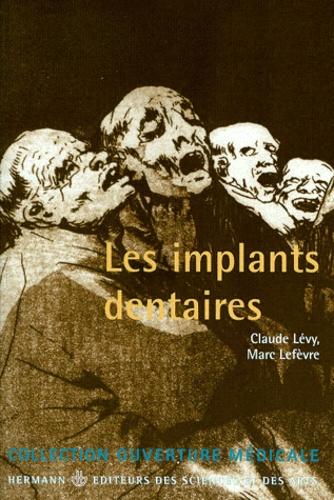 Les implants dentaires - Marc Lefevre,Claude Lévy