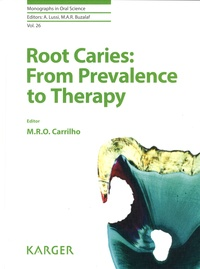 Marcela Rocha de Olivera Carrilho - Root Caries: From Prevalence to Therapy.