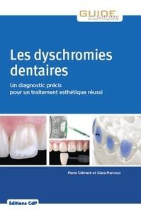 Marie Clément et Clara Marcoux - Les dyschromies dentaires - Un diagnostic précis pour un traitement esthétique réussi.