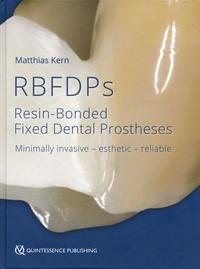 Matthias Kern - RBFDPs - Resin-Bonded Fixed Dental Prostheses - Minimally invasive - esthetic - reliable.
