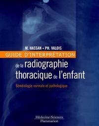 Deedr.fr Guide d'interprétation de la radiographie thoracique de l'enfant - Sémiologie normale et pathologique Image