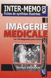 Michaël Soussan - Imagerie médicale - Les 100 diagnostics pour l'ECN.