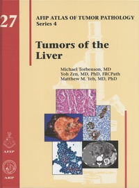 Michael Torbenson et Yoh Zen - Tumors of the Liver.