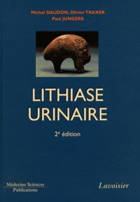 Michel Daudon et Paul Jungers - Lithiase urinaire.