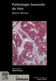 Michel Reynès et  Collectif - Pathologie tumorale du foie. - Groupe Metavir.