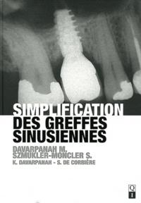 Simplification des greffes sinusiennes.pdf