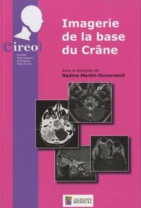 Deedr.fr Imagerie de la base du crâne - Journée de printemps du CIREOL 2010 Image