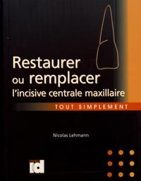 Feriasdhiver.fr Restaurer ou remplacer l'incisive maxillaire tout simplement Image