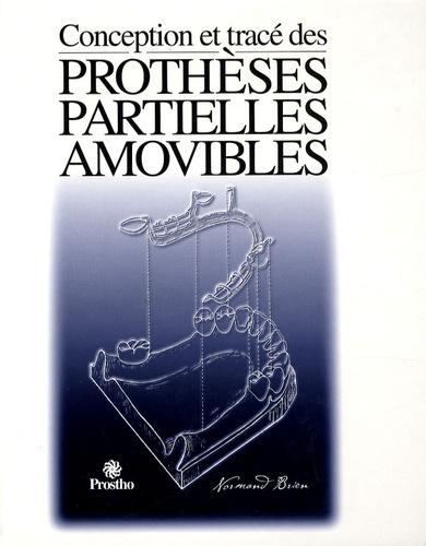 Normand Brien - Conception et tracé des prothèses partielles amovibles.