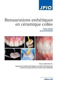 Restaurations esthétiques en céramique collée.pdf