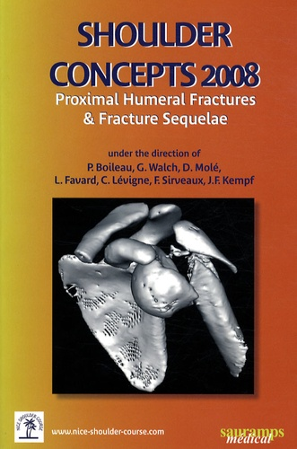Pascal Boileau - Shoulder Concepts 2008 - Proximal humeral fractures & fracture sequelae.