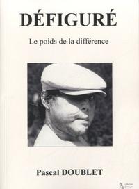 Pascal Doublet - Défiguré - Le poids de la différence.