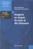 Pascal Guéret et Francis Joffre - Imagerie en coupes du coeur et des vaisseaux - Compte rendu des 3e rencontres de la SFC et de la SFR : Paris, 5 et 6 novembre 2009.