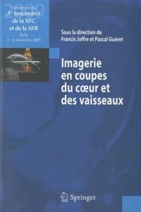 Imagerie en coupes du coeur et des vaisseaux - Compte rendu des 3e rencontres de la SFC et de la SFR : Paris, 5 et 6 novembre 2009.pdf