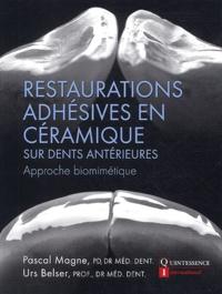 Pascal Magne et Urs Belser - Restauration adhésives en céramique sur dents antérieures - Approche biométrique.