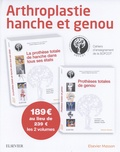 Patrice Mertl et Denis Huten - Arthroplastie hanche et genou - 2 volumes : Prothèses totales de genou ; La prothèse totale de hanche dans tous ses états.
