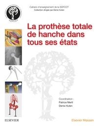 Patrice Mertl et Denis Huten - La prothèse totale de hanche dans tous ses états.