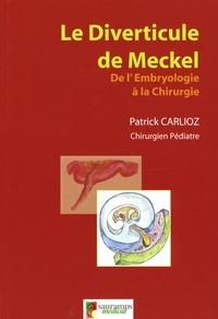 Patrick Carlioz - Le Diverticule de Meckel - De l'embryologie à la chirurgie.