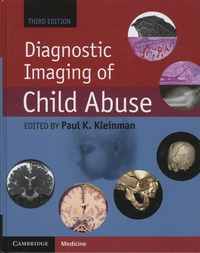 Cjtaboo.be Diagnostic Imaging of Child Abuse Image