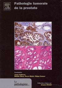 Philippe Camparo et Annick Vieillefond - Pathologie tumorale de la prostate.