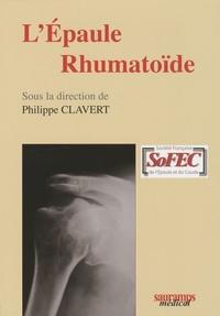 Lépaule rhumatoïde.pdf