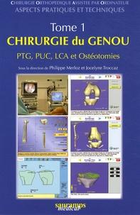 Checkpointfrance.fr Chirurgie orthopédique assistée par ordinateur - Aspects pratiques et techniques Tome 1, Chirurgie du genou PTG, PUC, LCA et ostéotomies Image