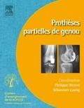 Philippe Neyret et Sébastien Lustig - Prothèses partielles du genou.