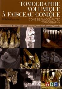 Philippe Rocher - Tomographie volumique à faisceau conique ou cone beam computed tomography - Justification, optimisation & lecture.