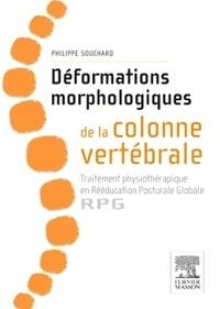 Déformations morphologiques de la colonne vertébrale : traitement physiothérapique en rééducation posturale globale - RPG.pdf