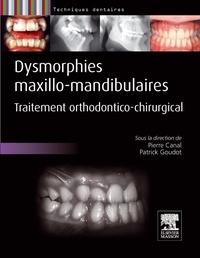 Pierre Canal et Patrick Goudot - Dysmorphies maxillo-mandibulaires - Traitement orthodontico-chirurgical.