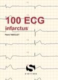 Pierre Taboulet - 100 ECG infractus.