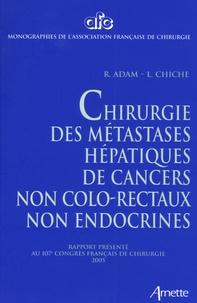 Goodtastepolice.fr Chirurgie des métastases hépatiques de cancers non colo-rectaux non endocrines Image