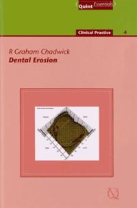 R. Graham Chadwick - Dental Erosion.