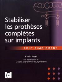 Ramin Atash - Stabiliser les prothèses complètes sur implants tout simplement.