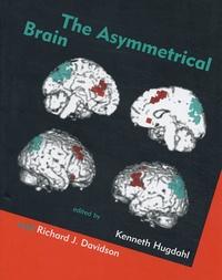 Accentsonline.fr The Asymmetrical Brain Image