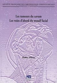 Birrascarampola.it Les tumeurs du cavum - Les voies d'abord du massif facial Image