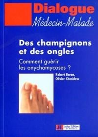 Checkpointfrance.fr Des champignons et des ongles - Comment guérir les onychomycoses ? Image