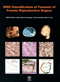 Robert J. Kurman et Maria Luisa Carcangiu - WHO Classification of Tumours of Female Reproductive Organs.