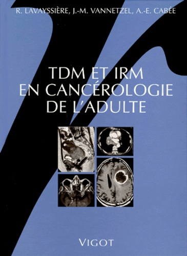 Robert Lavayssière et Jean-Michel Vannetzel - TDM et IRM en cancérologie de l'adulte.