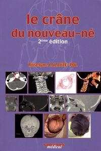 Le crâne du nouveau-né - Des contraintes foetales et leurs enjeux neurologiques aux répercussions chez ladulte.pdf