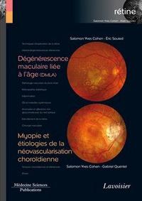 Alixetmika.fr Rétine - Tome 7, Dégénérescence maculaire liée à l'âge (DMLA) ; Myopie et étiologies de la néovascularisation choroïdienne Image
