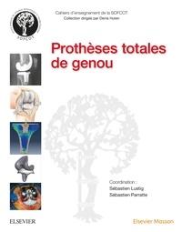 Sébastien Lustig et Sébastien Parratte - Prothèses totales de genou.