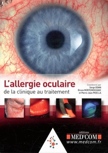 Serge Doan et Bruno Mortemousque - L'allergie oculaire.