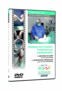 Paul Coppens et Pierre Moissonnier - Dysplasie de la hanche : traitement par symphysiodèse. 1 DVD